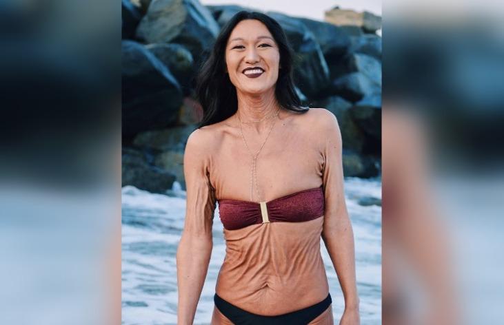 40 фото особенных людей с аномалией внешности